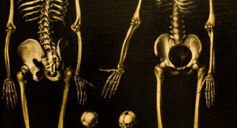 21 morts de la peste à Madagascar en quelques semaines