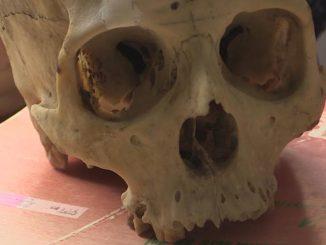 Les 17 crânes découverts à Toulouse remis à la faculté de médecine