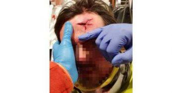 Un membre de l'Observatoire toulousain des Pratiques Policières blessé par un tir pendant l'acte XII