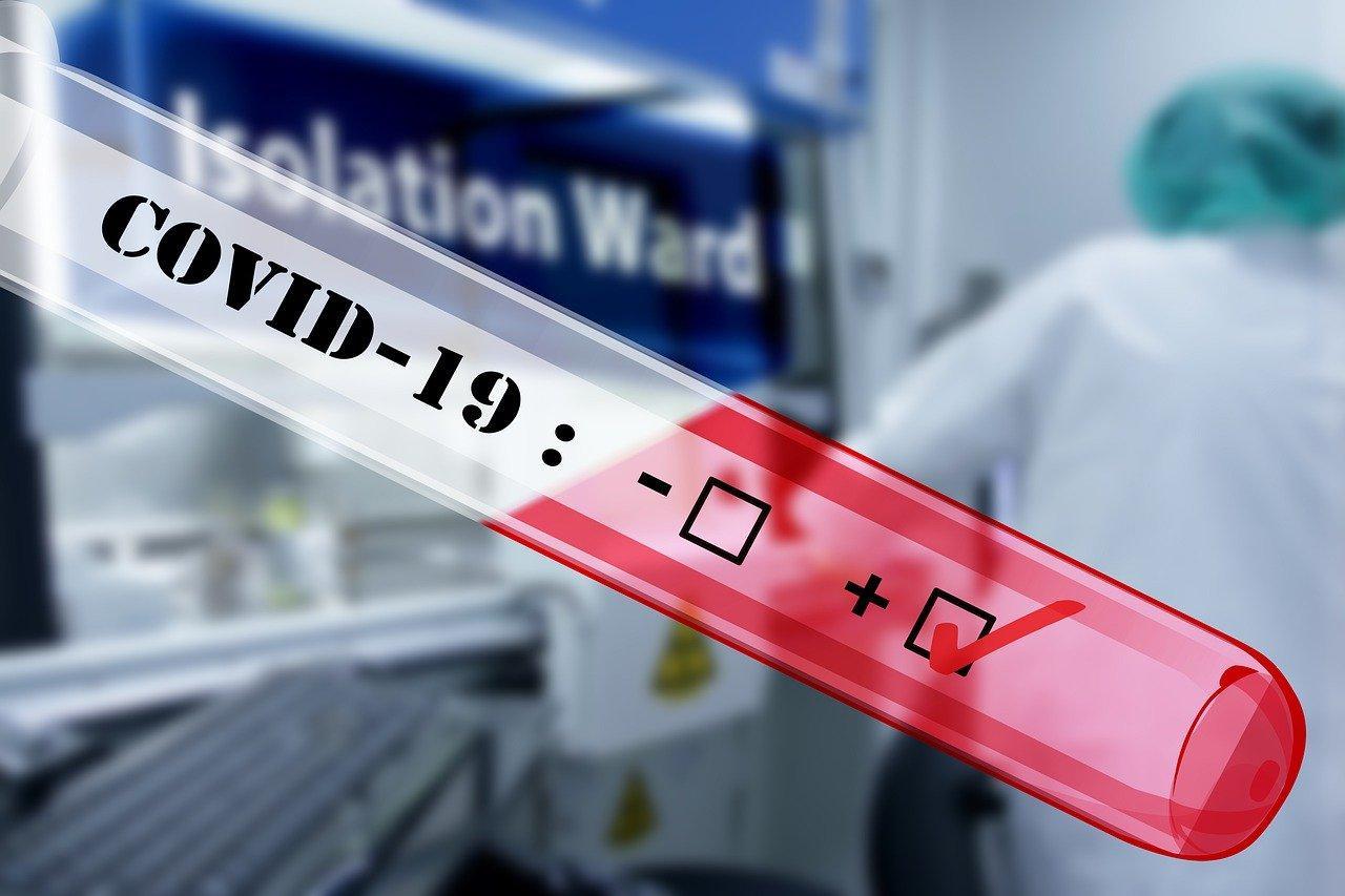 Coronavirus. Le gouvernement refuse les tests systématiques et contrevient aux prescriptions de l'OMS